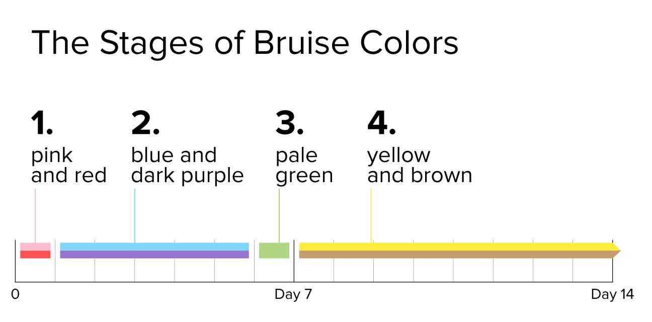 Bruise coloring #19, Download drawings