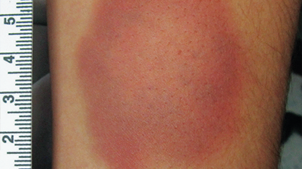 Bruise coloring #5, Download drawings
