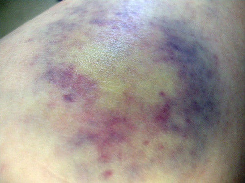 Bruise coloring #16, Download drawings
