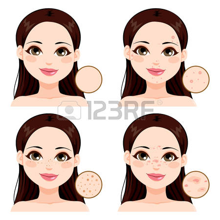 Freckles clipart #11, Download drawings