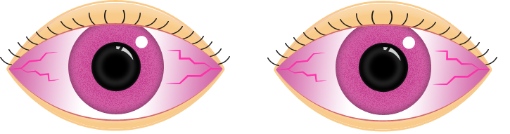 Pink Eyes clipart #4, Download drawings