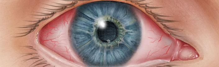 Pink Eyes coloring #14, Download drawings