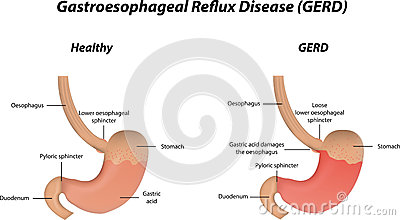 Reflux clipart #3, Download drawings