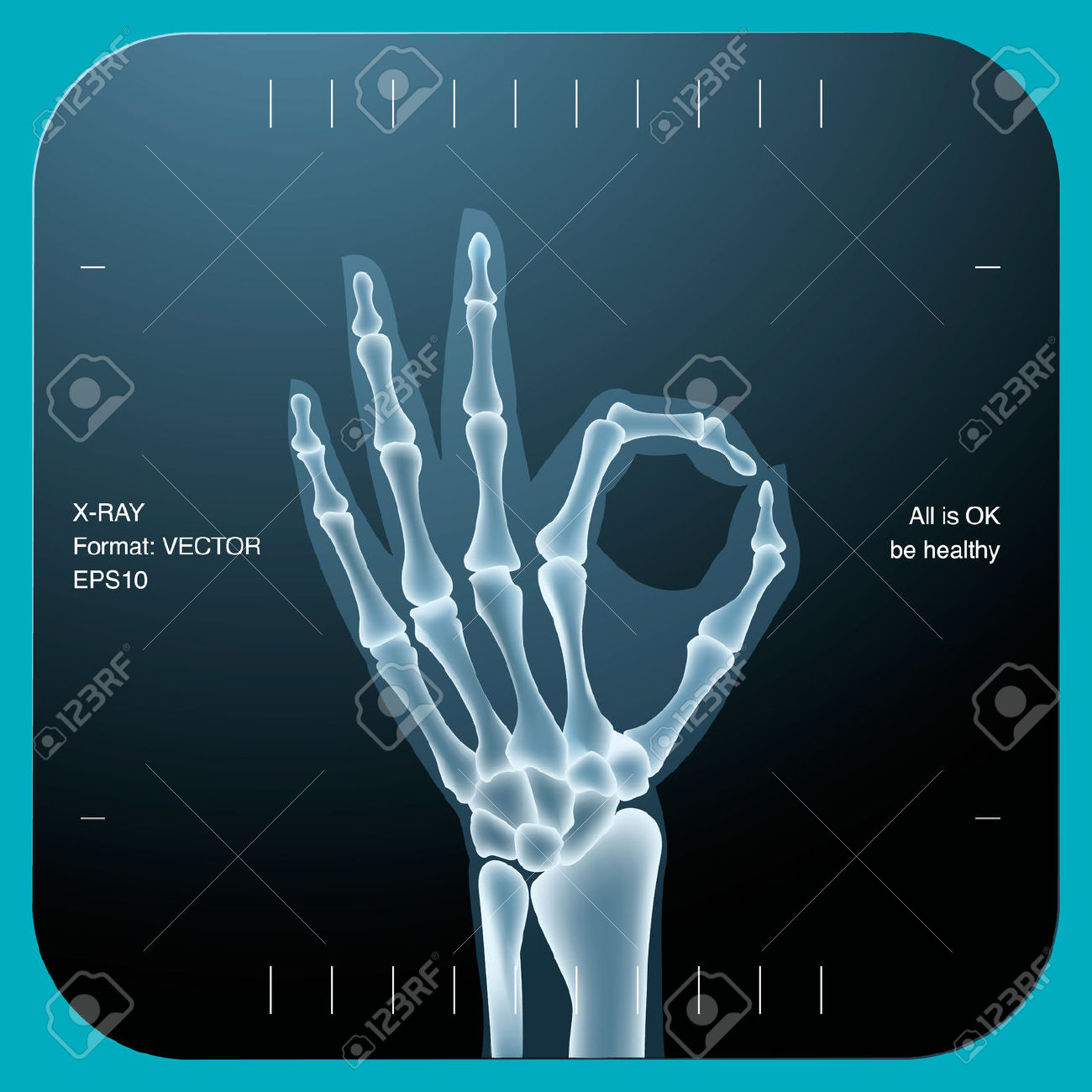 X-ray clipart #10, Download drawings