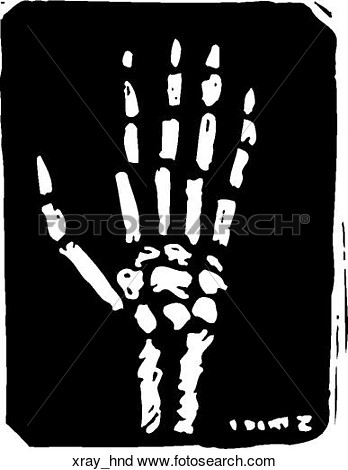 X-ray clipart #1, Download drawings