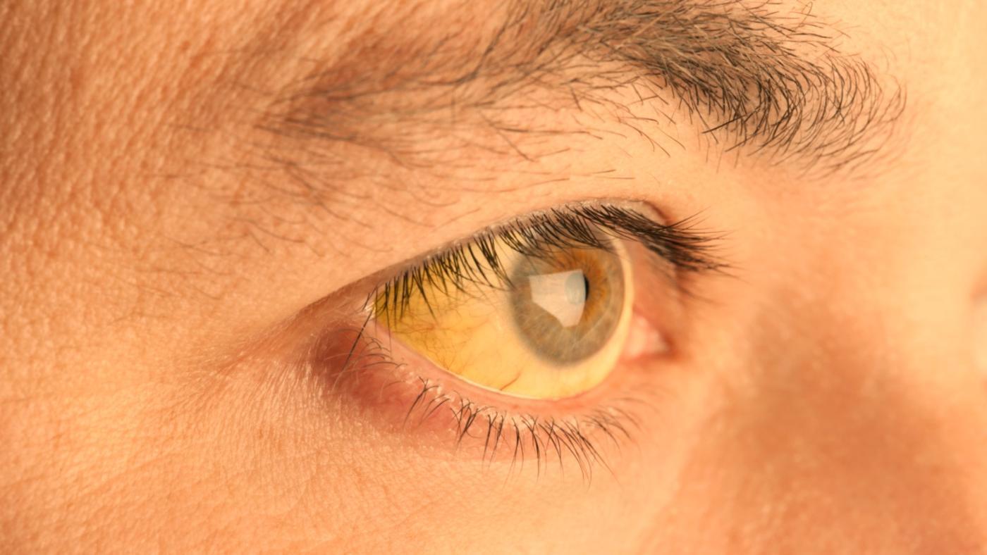 Yellow Eyes coloring #12, Download drawings